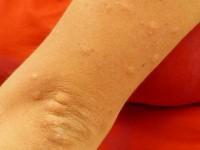 Évitez et soulagez les piqûres de moustiques suivant trois conseils